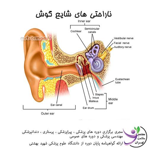 دوره تکنسین داروخانه - ناراحتی های شایع گوش
