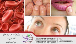 کم خونی | دوره دیالیز | آموزش دیالیز