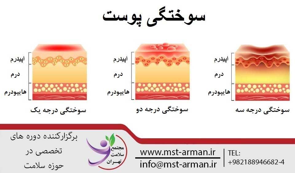 پرستار سوختگی کیست   مجتمع سلامت تهران