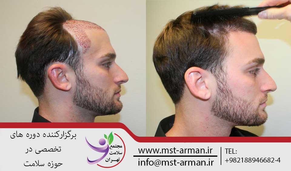 کاشت موی طبیعی | مجتمع سلامت تهران