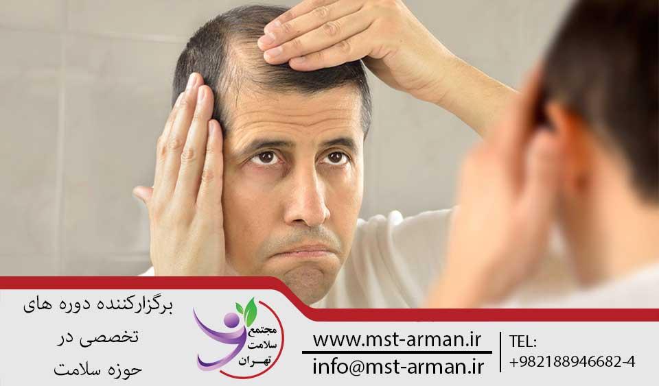 ملاحضلات قبل از عمل کاشت مو | مجتمع سلامت تهران
