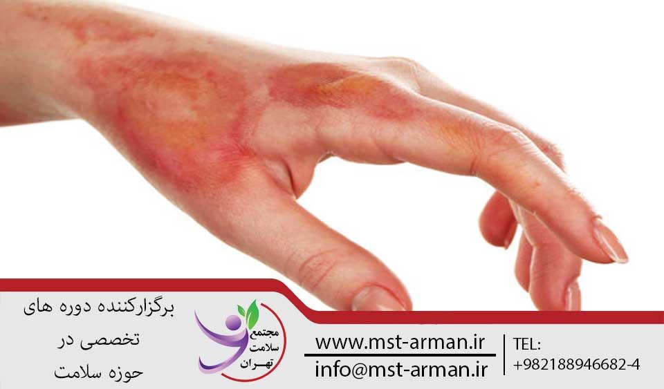دوره پرستاری سوختگی   مجتمع سلامت تهران