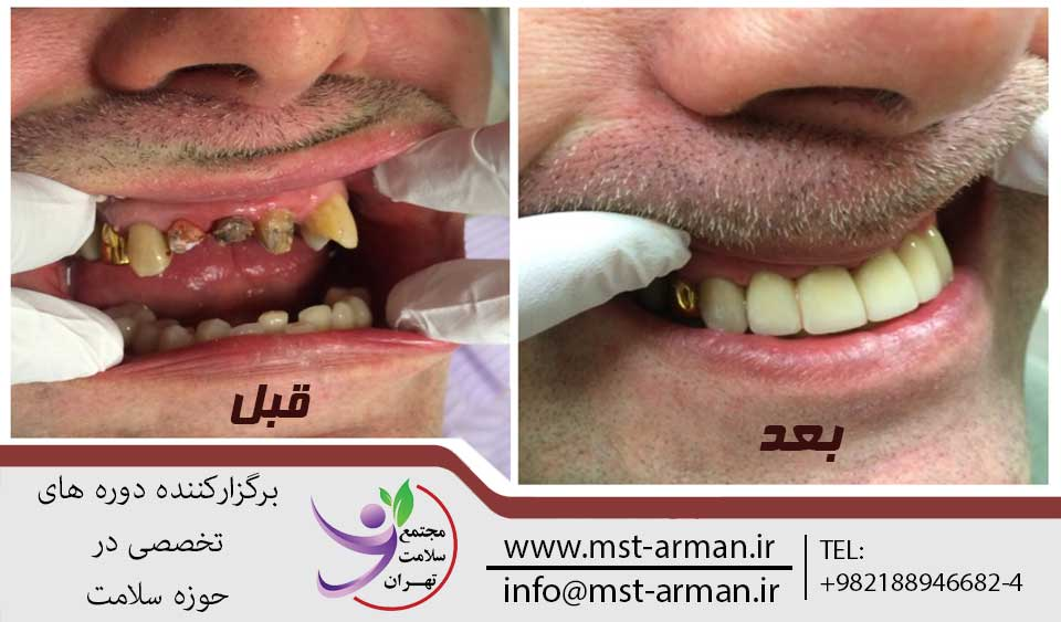 دندانپزشکی ترمیمی | مجتمع سلامت تهران
