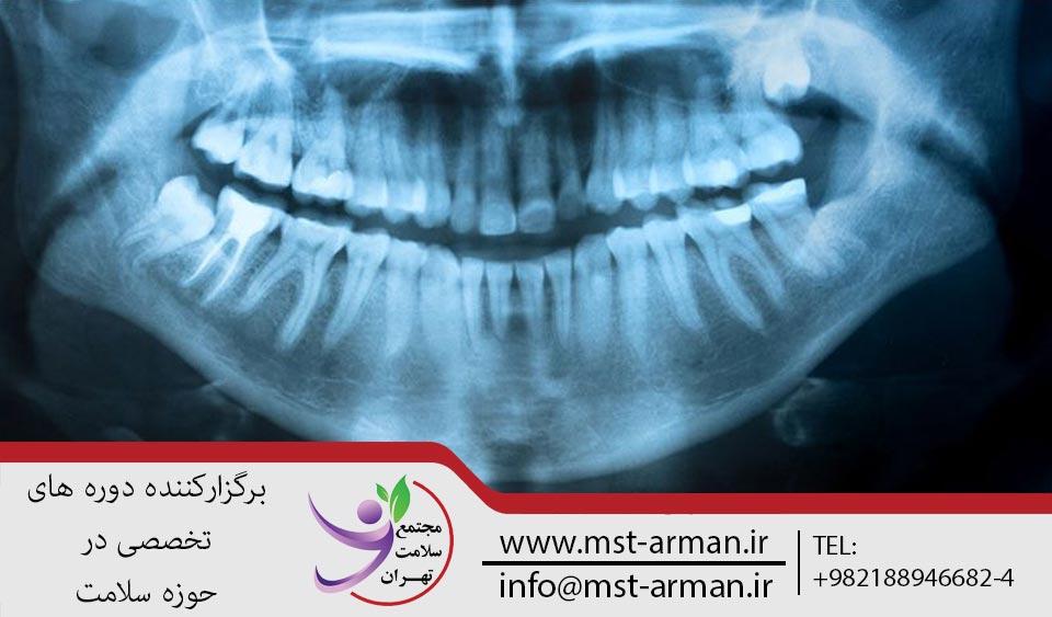 رادیوگرافی دندان