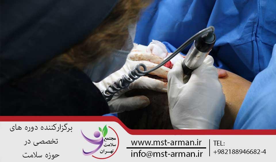 دوره کاشت مو | مجتمع سلامت تهران