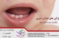 ویژگی های دندان شیری