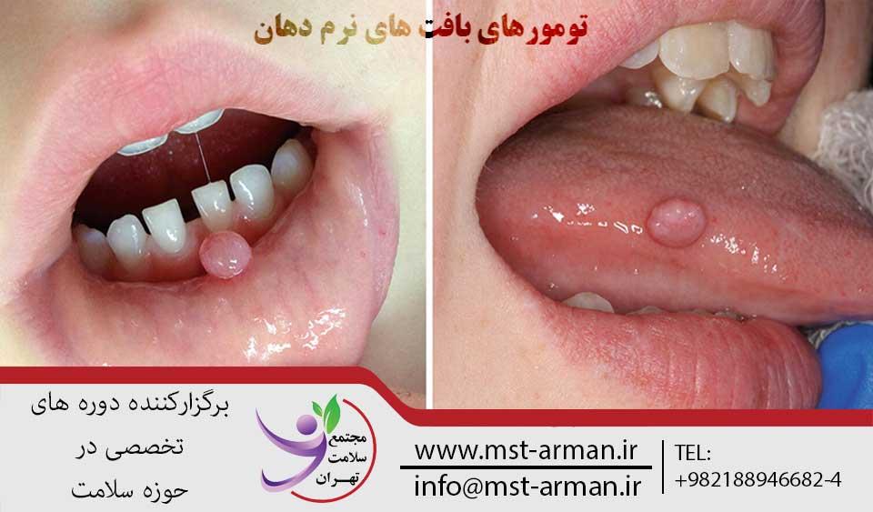 تومورهای بافت های نرم دهان | مجتمع سلامت تهران