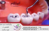 آمالگام دندانی