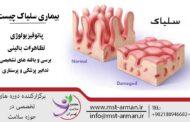 بیماری سلیاک چیست