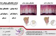 ترک و شکستگی مینای دندان