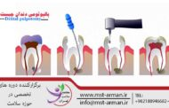 پالپوتومی دندان چیست؟