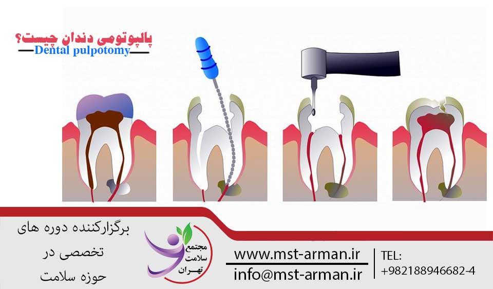 پالپوتومی دندان | مجتمع سلامت تهران