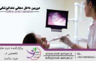 دوربین داخل دهانی دندانپزشکی