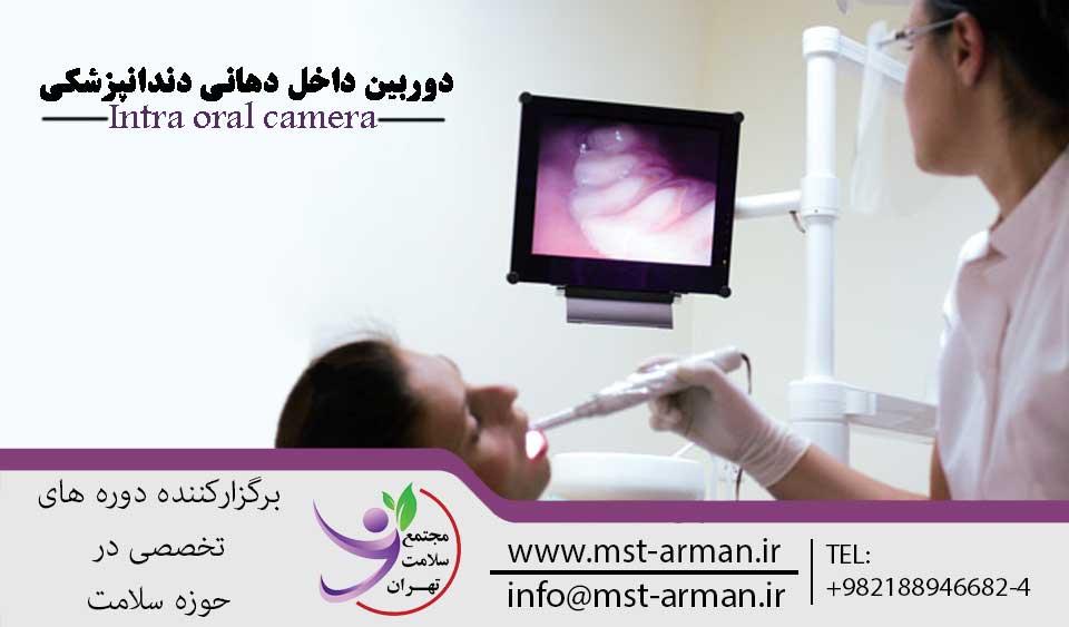 Intra oral camera | مجتمع سلامت تهران