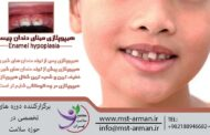 هیپوپلازی مینای دندان چیست؟