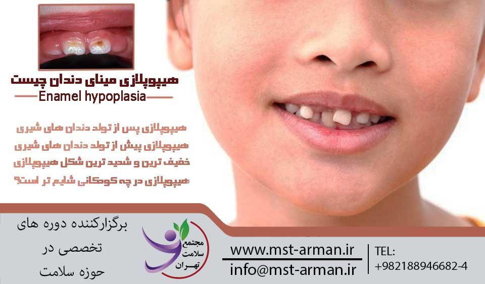 علت هیپوپلازی مینای دندان؟ | مجتمع سلامت تهران