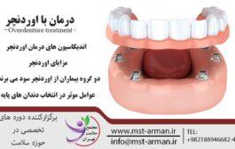 درمان با اوردنچر